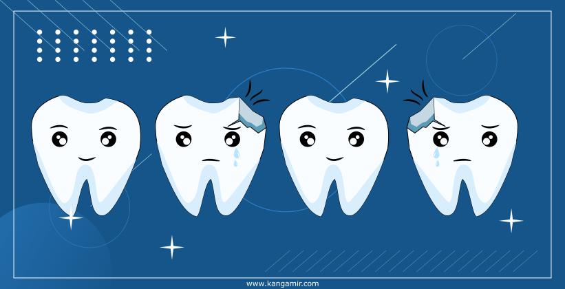 Ini Dia 8 Permasalahan Gigi yang Perlu Anda Ketahui