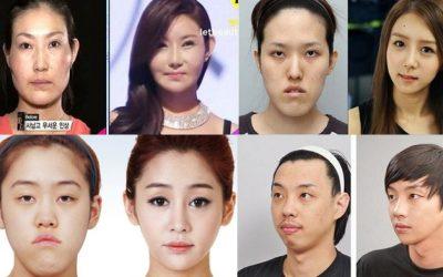 9 Fakta Mengejutkan Tanggapan Orang Korea Tentang Operasi Plastik