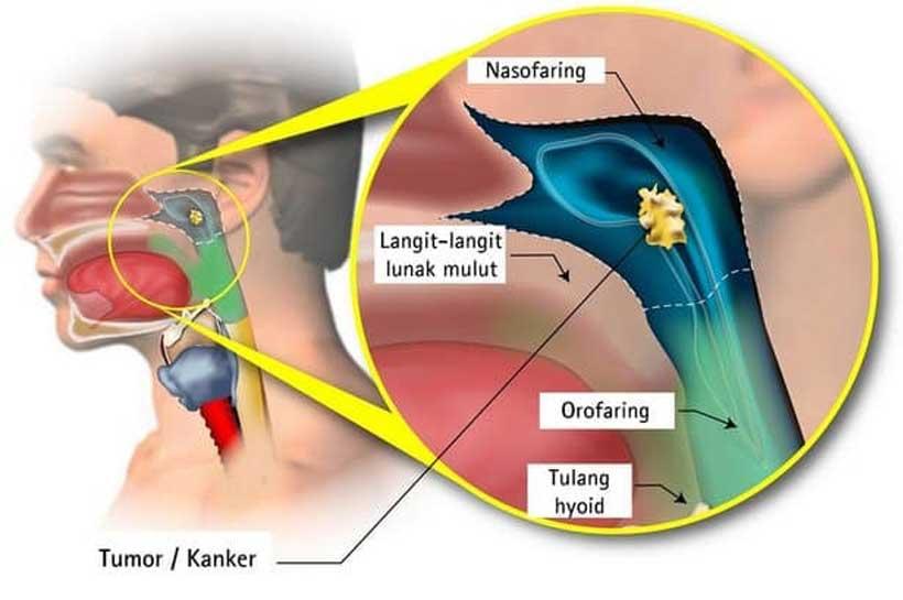 Hidung Tersumbat Disertai Darah Keluar dari Hidung ?  Awas Itu Kanker Nasofaring