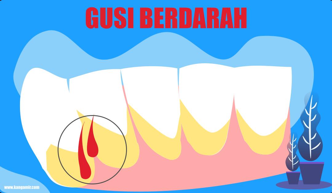 Dapat Menanggalkan Gigi – Ini Dia Beberapa Penyebab Gusi Berdarah