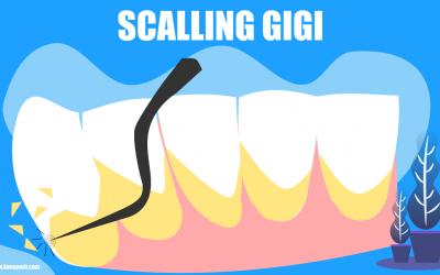 2 Kali Scalling – Ini Pengalaman Saya Membersihkan Karang Gigi di Dokter Gigi